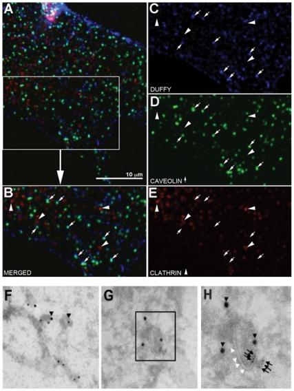 100 ng/mL human recombinant CCL2