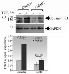 recombinant TGF-β2